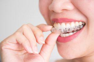 элайнеры на зубы цена