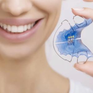 ортодонтические аппараты в стоматологии