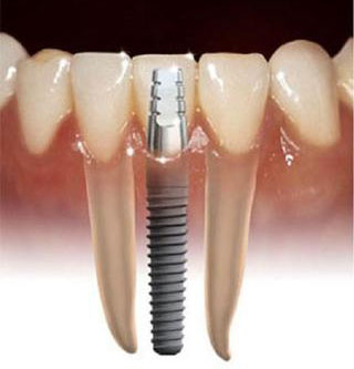 Имплантация зубов, фото