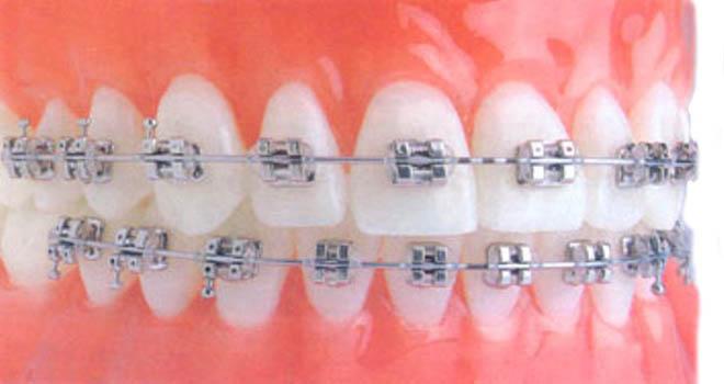 стоматолог ортодонт киев
