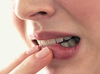 Лечение пародонтита, фото