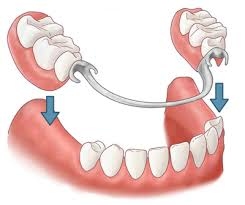 Протезирование зубов, фото