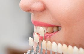 Реставрация зубов, фото