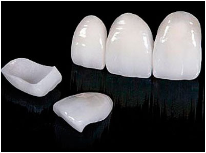 Металлокерамические коронки, фото