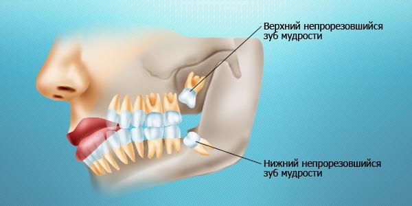 Строение зубов (зубы мудрости)