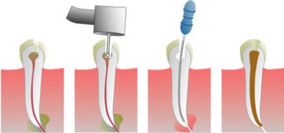 удаления нерва из зуба