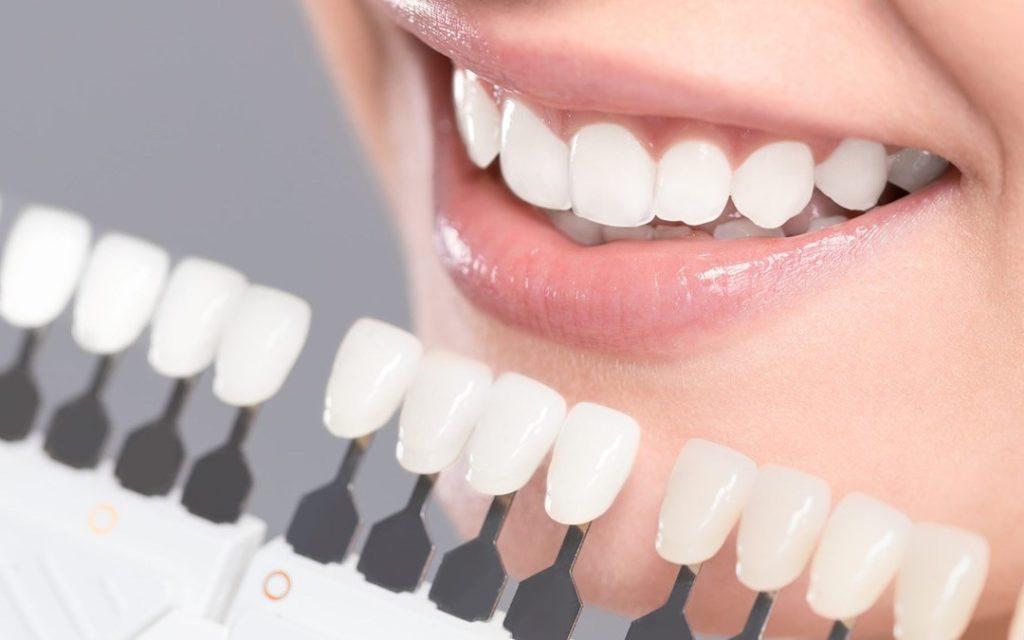Керамические накладки на зубы