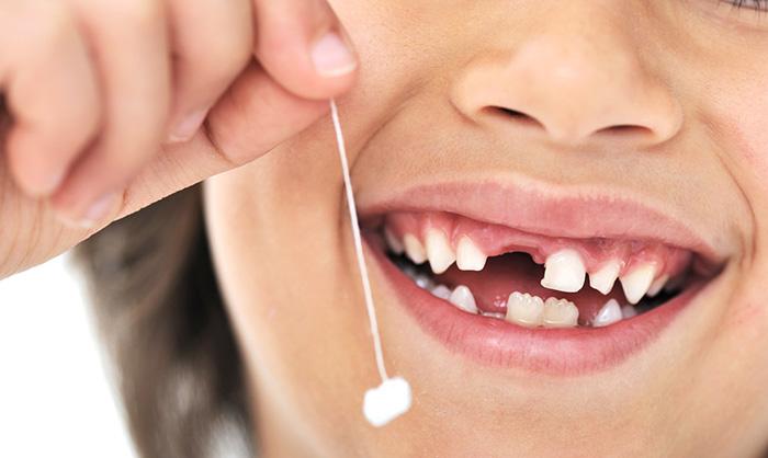Удаление зубов у детей, фото