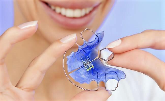 Ортодонтические аппараты, фото