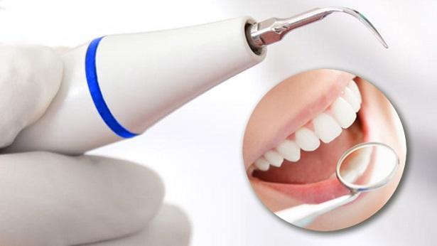 Ультразвукова чистка зубів, фото