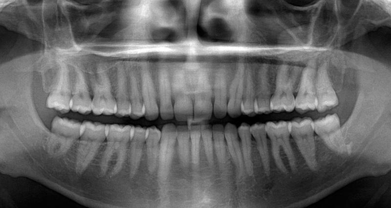 Панорамный снимок зубов, фото