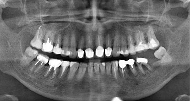 Рентген зубів, фото