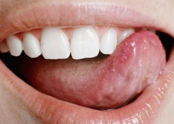 Пластика уздечки губ и языка, фото