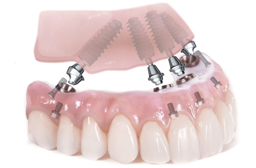 Сколько стоит зубной протез