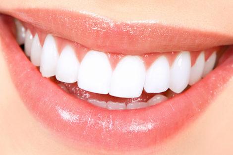 Домашнє відбілювання зубів, фото
