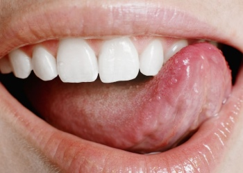 Пластика вуздечки губ і язика, фото