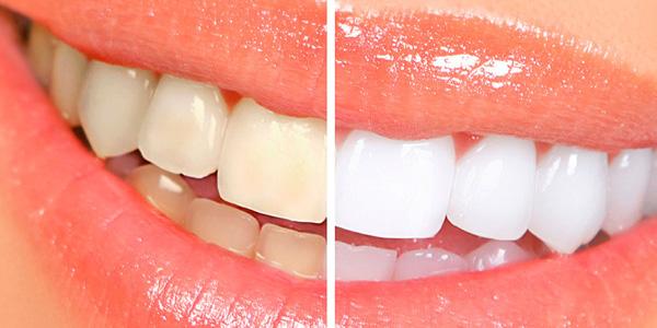Відбілювання зубів Zoom системою, фото